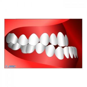 顎変形症2