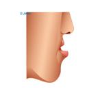 顎変形症3