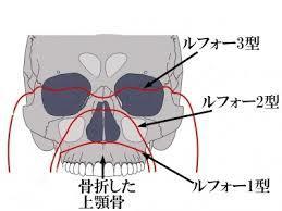 上アゴ手術1