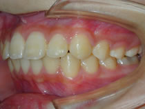 歯肉炎術後